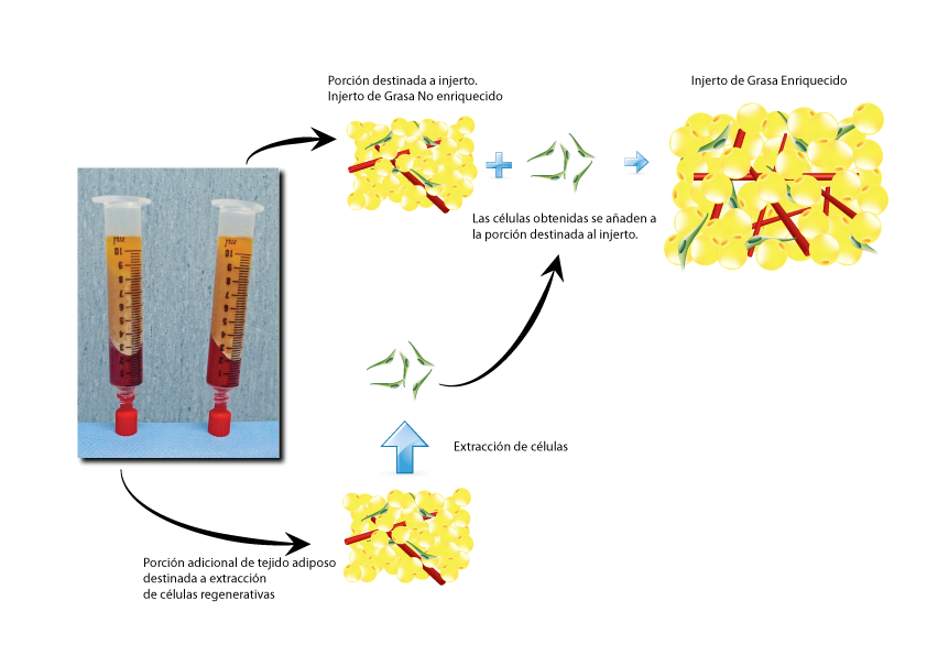 injerto de grasa y celulas madre | Dr. Juan Monreal | Dr. Juan Monreal