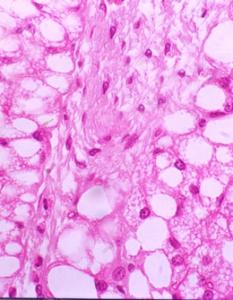 Lipoimplante: beneficios biologicos y terapias celulares