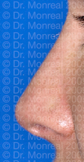 Remodelación Nasal por Lipoimplante - Después