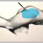 Postoperatorio de los Lipoimplantes