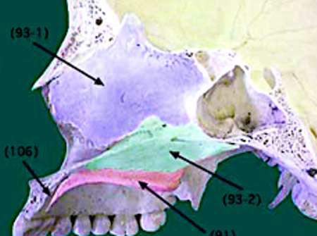 Que es una rinoseptoplastia - Dr. Juan Monreal