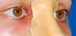 Mi nueva nariz tras una Rinoplastia