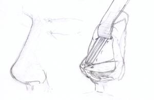Modificaciones de la nariz en una Rinoplastia
