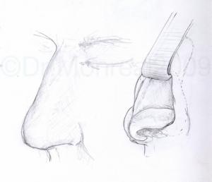 Rinoplastia abierta. Dr. Juan Monreal