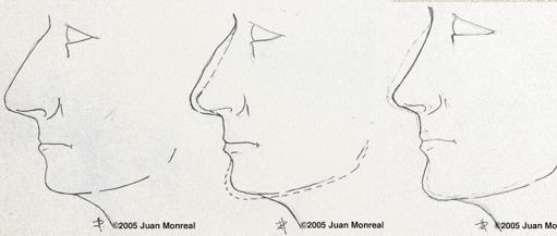 Resultado de imagen para rinoplastia dibujo