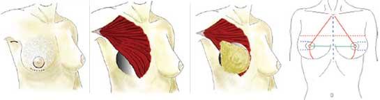 Aumento de mamario