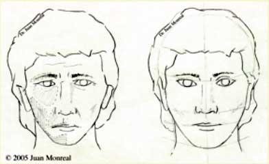 Cirugía Contorno Facial