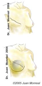 Expansión de piel en la reconstrucción de mama