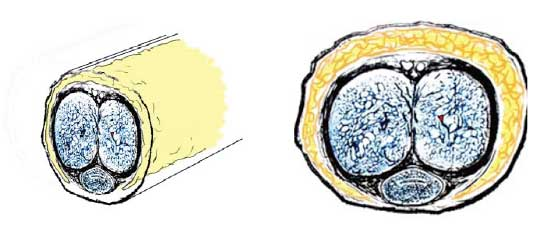 Cirugía genital en el hombre