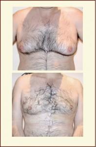 Resultado de ginecomastia