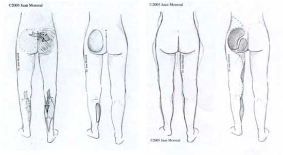 Remodelacion de glúteos | Dr. Juan Monreal