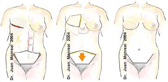 Reconstrucción de mama