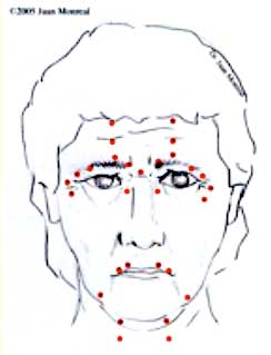 Rejuvenecimiento facial no quirúrgico