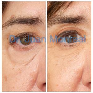 Cirugía estética en el contorno de ojos. Dr. Juan Monreal