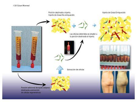 Que es un lipoimplante enriquecido con células regenerativas