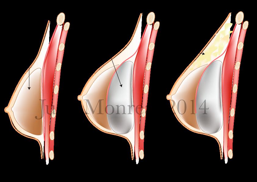 Corrección de malos resultados en aumento de pecho | Dr. Juan Monreal