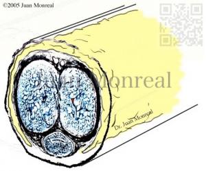 Engrosamiento de pene - Dr. Juan Monreal