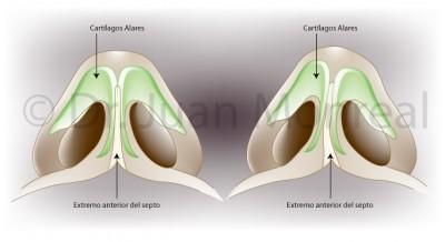 Rinoseptoplastia. Dr. Juan Monreal