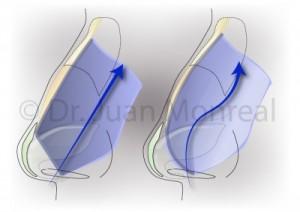 Nose-Septum-Oblique