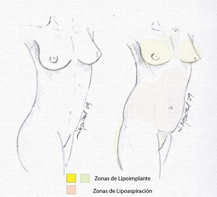 Remodelación Pecho Mujer. Lipoimplante. Dr. Juan Monreal