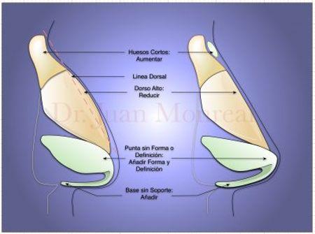 Punta nasal sin proyección Dr. Juan Monreal