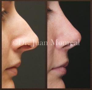 Tratamiento de la nariz a tensión