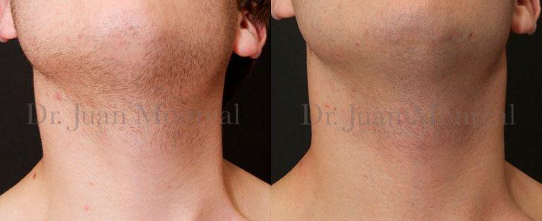 Mejora de la simetría en Torticolis Muscular Congénito tratado mediante células regenerativas