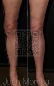 Tratamiento del contorno de piernas, muslos y tobillos mediante injerto de grasa enriquecido con células regenerativas. A la derecha el resultado después de un año.
