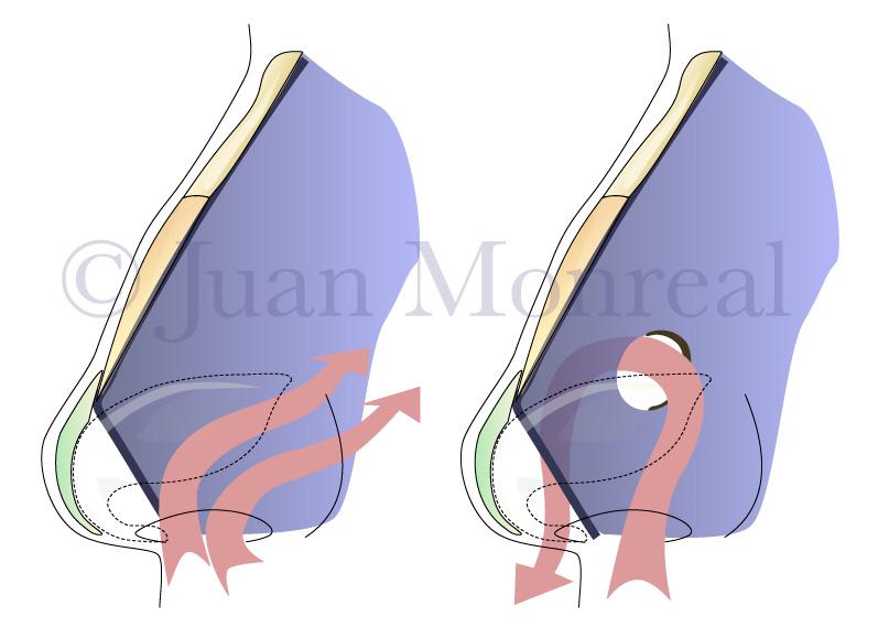 Flujo aéreo correcto (izquierda) cuando el septo nasal está íntegro. Flujo aéreo con turbulencias (derecha) en un tabique nasal perforado.