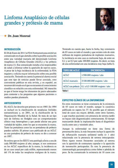 articulo-linfoma-anaplasico-y-protesis-de-mama