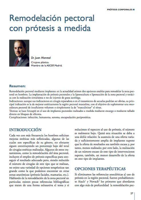 articulo-remodelacion-pectoral-con-protesis-a-medida
