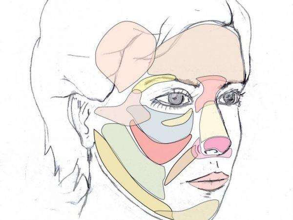 Modelado de mentón y mandíbula con injertos de grasa - Cara Jóven - Dr. Juan Monreal