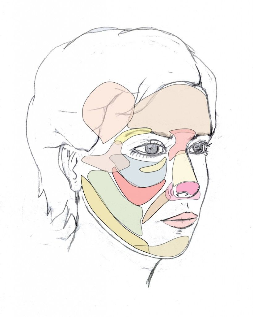 Modelado de mentón y mandíbula   Dr. Juan Monreal