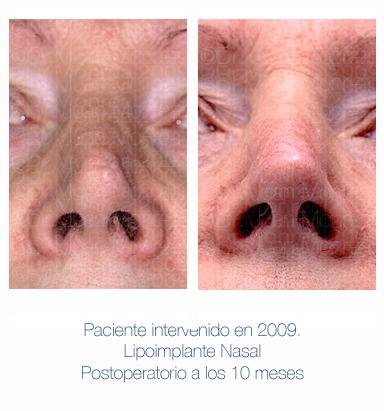 Antes y después - Preoperatorio - Postoperatorio - Rinomodelación con lipoimplante nasal - Dr. Juan Monreal