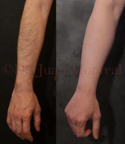 Resultado de un lipoimplante en antebrazos, muñecas y dorso de mano.