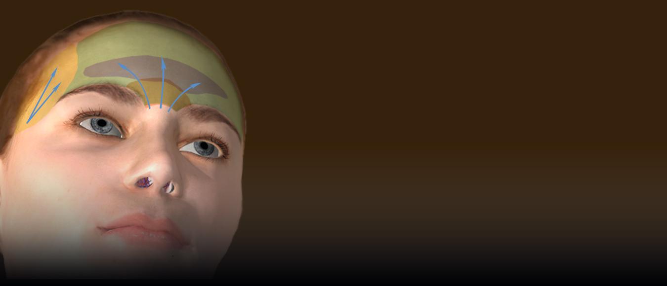 Lipoimplante-frente-sienes-Dr-Juan-Monreal