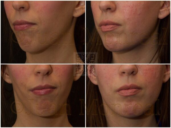 Modelado de mentón y mandíbula con injertos de grasa usando la técnica de Lipoimplante - Dr Juan Monreal