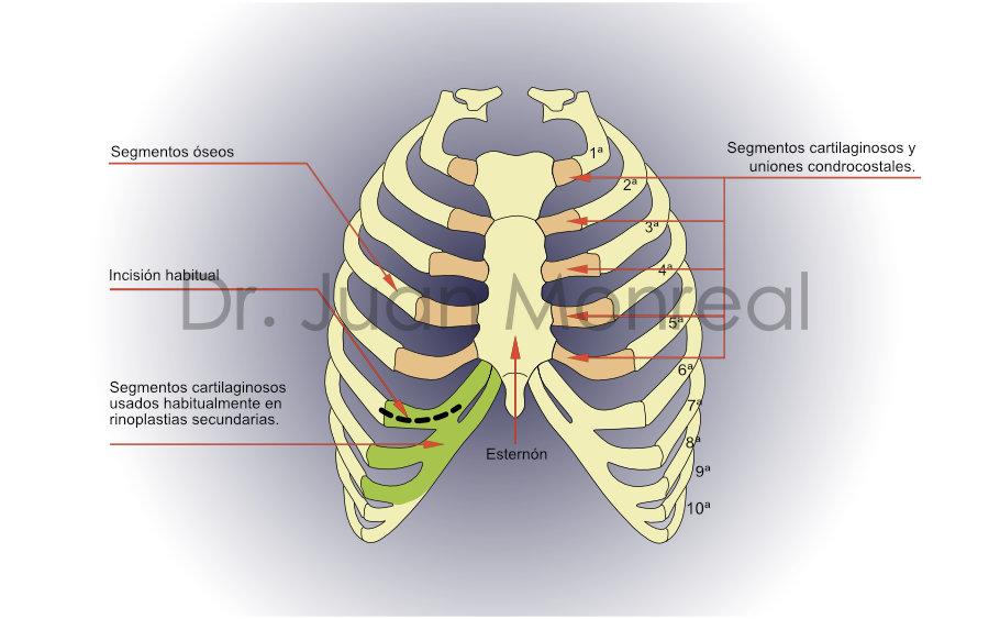 Esquema de costillas válidas para injertos en rinoplastia - Dr. Juan Monreal