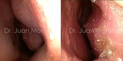 tratamiento-snv-ens-pre-post2-costilla-dr-monreal