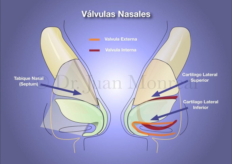 Nariz - Valvulas Nasales 01 - dr juan monreal