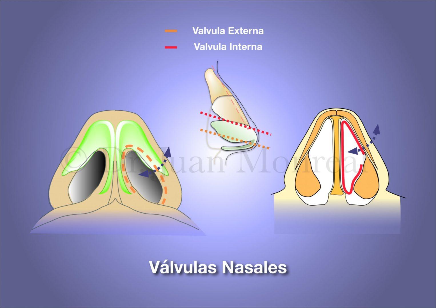 Válvulas nasales y rinoplastia   Dr. Juan Monreal