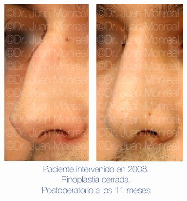 Antes y después - Preoperatorio - Postoperatorio de Rinoplastia cerrada - Dr. Juan Monreal