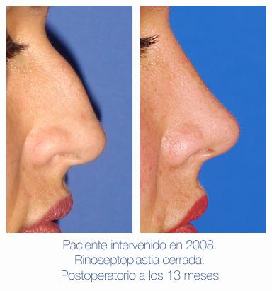 Antes y después - Preoperatorio - Postoperatorio de Rinoplastia - Rinoseptoplastia cerrada - Dr. Juan Monreal