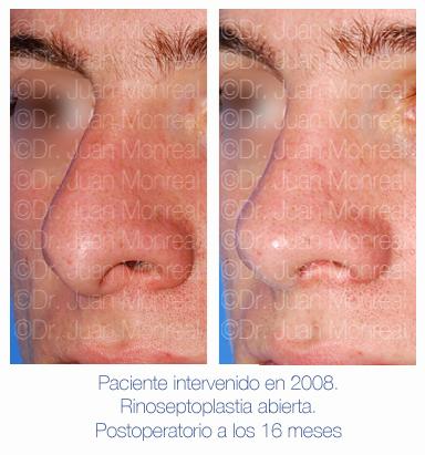 Antes y después - Preoperatorio - Postoperatorio de Rinoplastia - Rinoseptoplastia abierta - Dr. Juan Monreal