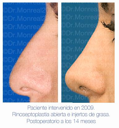Antes y después - Preoperatorio - Postoperatorio de Rinoplastia - Rinoseptoplastia abierta e injertos de grasa - Dr. Juan Monreal