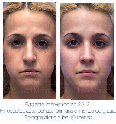 Antes y después - Preoperatorio - Postoperatorio de Rinoplastia - Rinoseptoplastia cerrada primaria e injertos de grasa - Dr. Juan Monreal