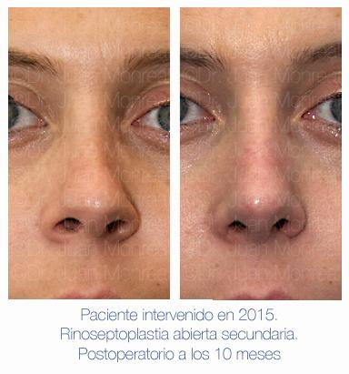 Antes y después - Preoperatorio - Postoperatorio de Rinoplastia - Rinoseptoplastia abierta secundaria - Dr. Juan Monreal