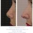 Como se trata un punta nasal excesivamente alta. Nariz Corta.