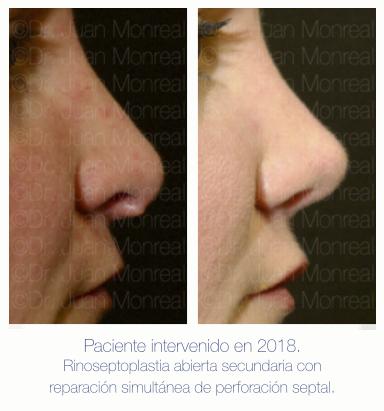 Preoperatorio - Postoperatorio de Rinoplastia y Perforación de tabique nasal - Dr Monreal