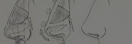 Proceso Rinoplastia Dr. Juan Monreal